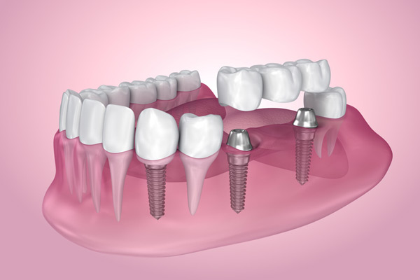 3D rendering of mouth with multiple dental implants